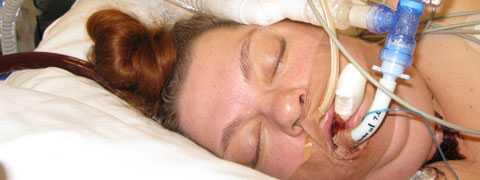 I tre veckor låg Sara Sundlin från Hallstavik nedsövd på Karolinska universitetssjukhuset med en så kallad konstgjord lunga efter att hon insjuknat akut i svininfluensa.
