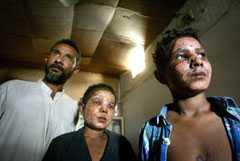 Kiget i Irak. Bröderna Ahmed, 12, och Mohammed, 14, brännskadades svårt i ansiktena av en klusterbomb när de hämtade ved.
