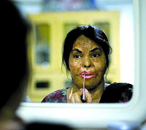 Sabira Sultana, 30. Var nygift och gravid. Men maken tyckte att de fått en klen hemgift från hennes föräldrar – därför hällde han frätande syra över kvinnan som väntade hans barn. Ärren från attacken kan inte suddas ut helt, men efter 20 plastikoperationer kan Sabira åter se sig själv i spegeln.
