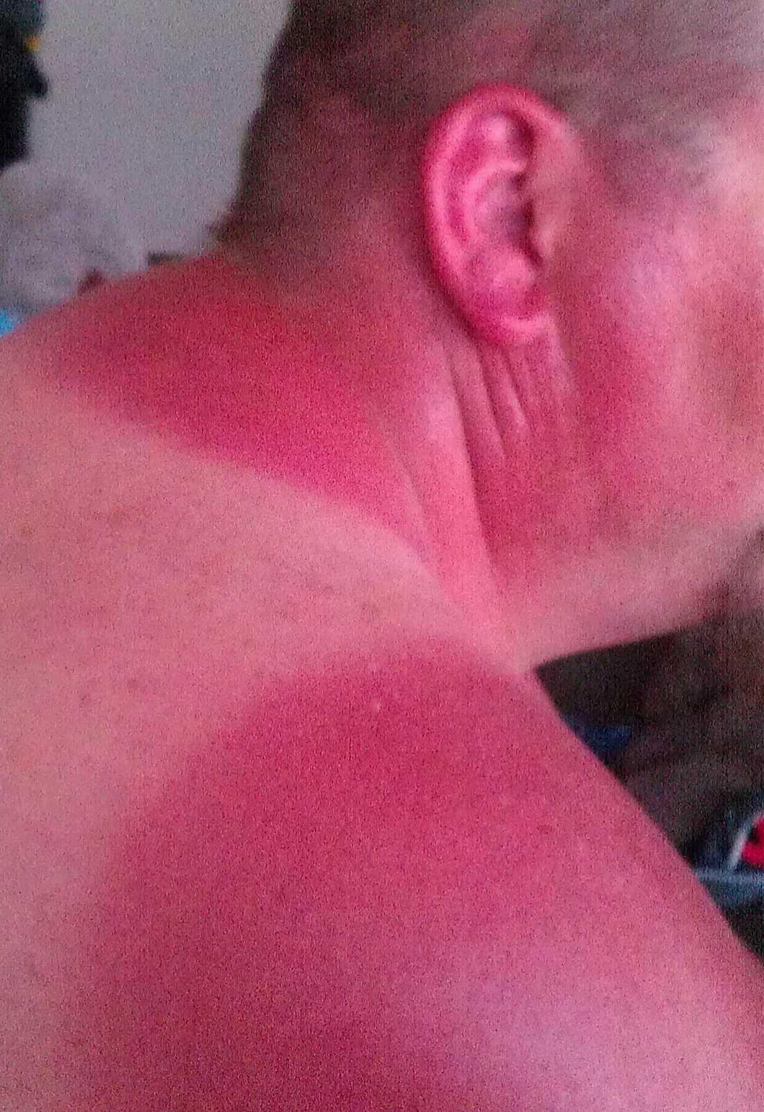 Vinden kan vara förrädisk. Den här mannen snickrade på en stuga hela dagen, men en svalkande bris gjorde att han inte kände hur mycket solen tog.