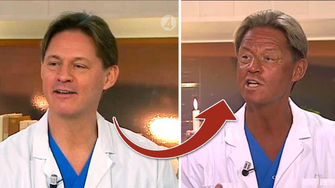 FÖRVANDLINGEN Tv-läkaren Mikael Sandström –före och efter sin solsemester –som blev en stor snackis i veckan.