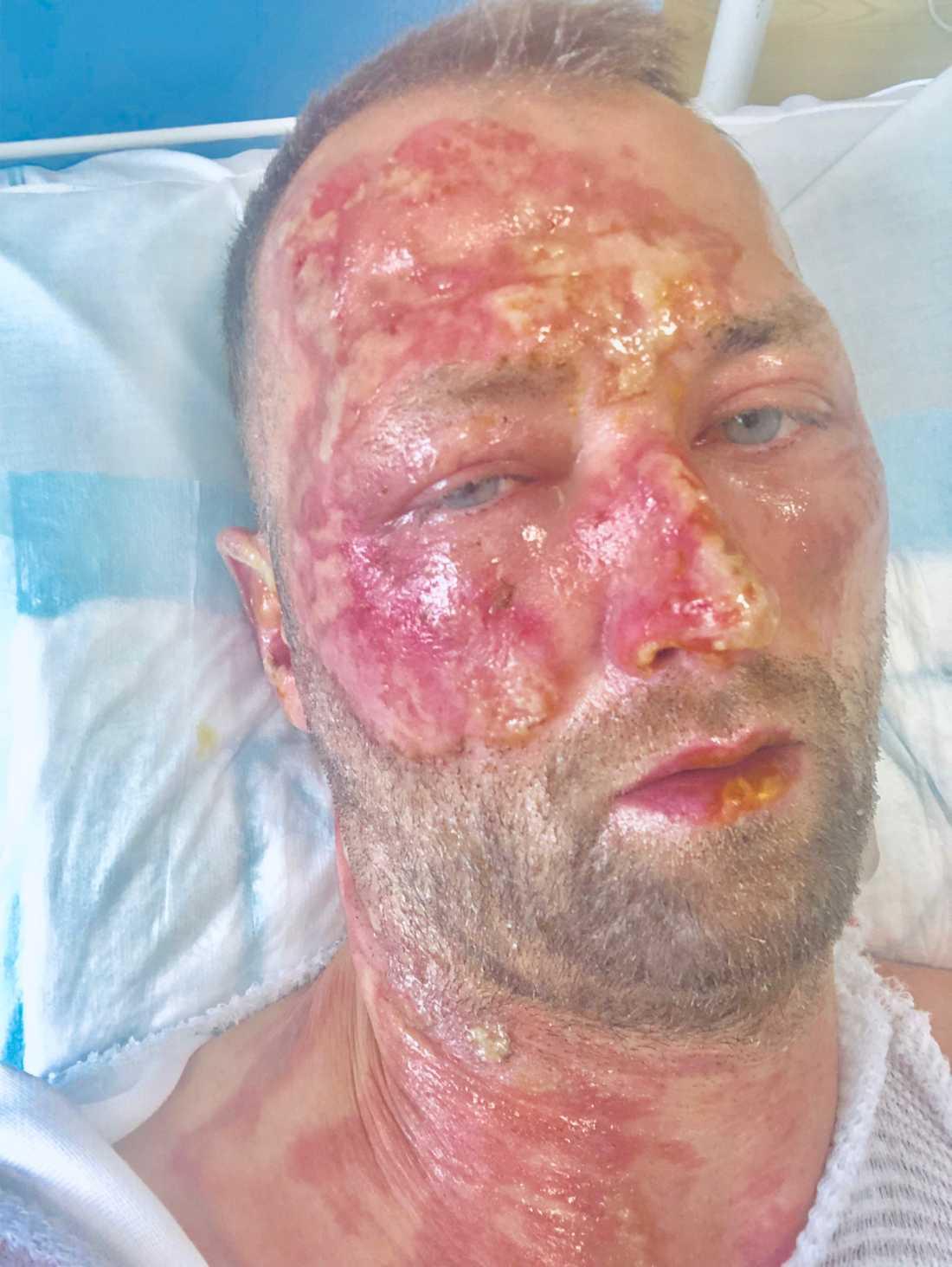 Kristian Huselius, 40, vårdas för brännskador på en intensivvårdsavdelning.