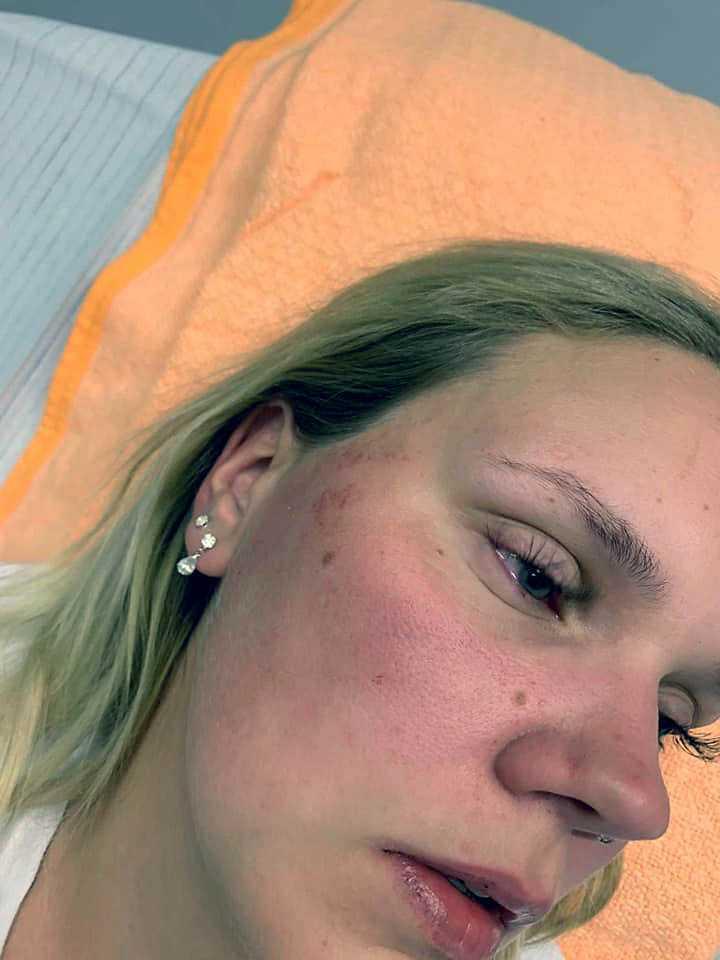 Rebecca Andersson och hennes syster blev under fredagskvällen överfallna.