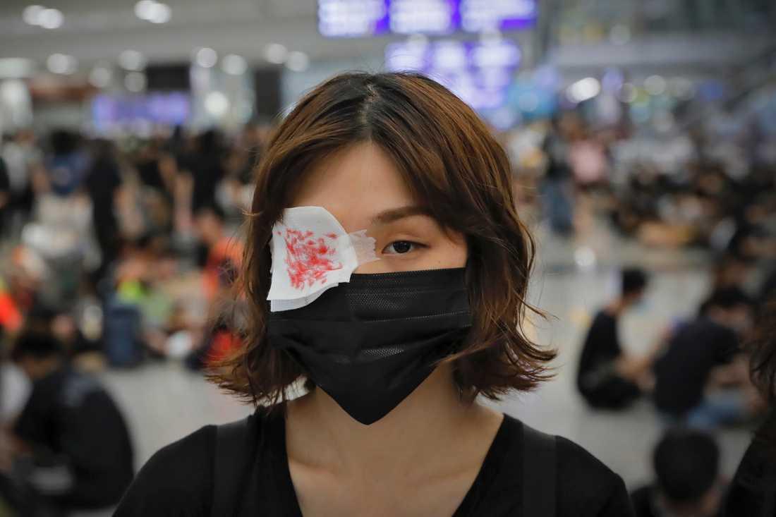 I sympati med en kvinna som ska ha fått sitt öga sönderskjutet av en polis bar demonstranterna på Hongkongs flygplats under måndagen rödmålade lappar över ögonen.