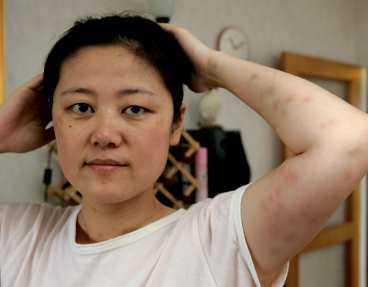 Li Yu Liang har nu fått tillbaka pengarna som hon lagt ut på hotellvistelsen.