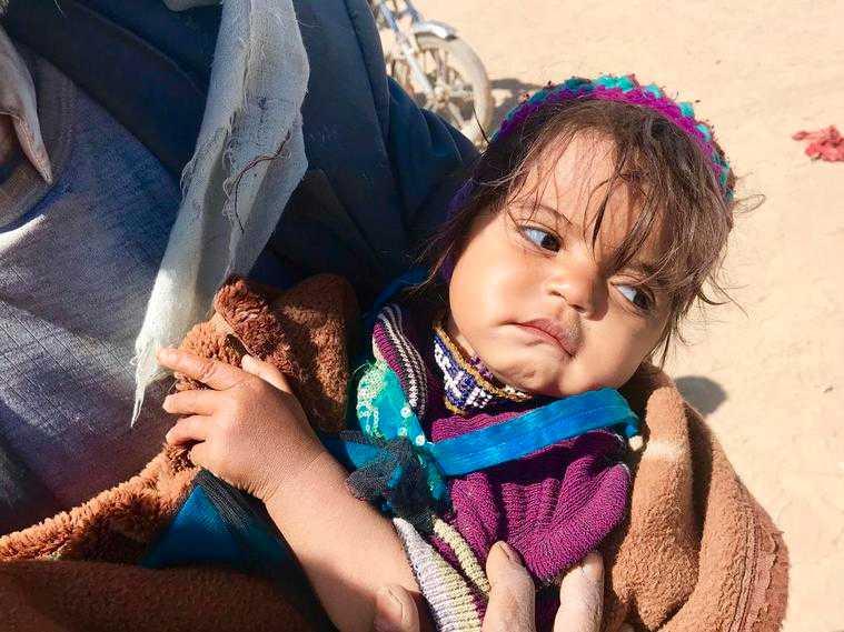 Tvååriga Fahina kan varken andas eller äta ordentligt, och hennes familj har inte råd att ta henne till ett sjukhus för behandling. De har tvingats fly sitt hem i Sa'ada i Jemen och lever nu under tuffa förhållanden i flyktingläger.