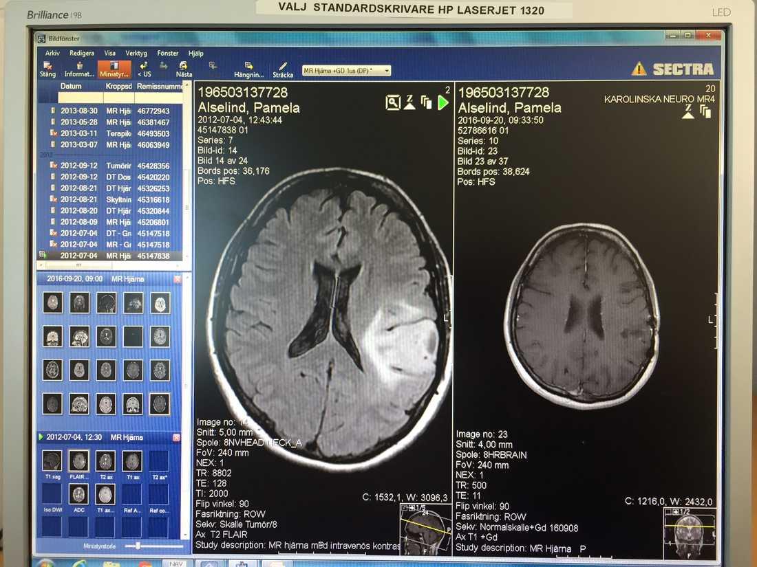 Till vänster syns tumören i Pamelas hjärna när den upptäcktes i juli 2012. Till höger: Den är borta.