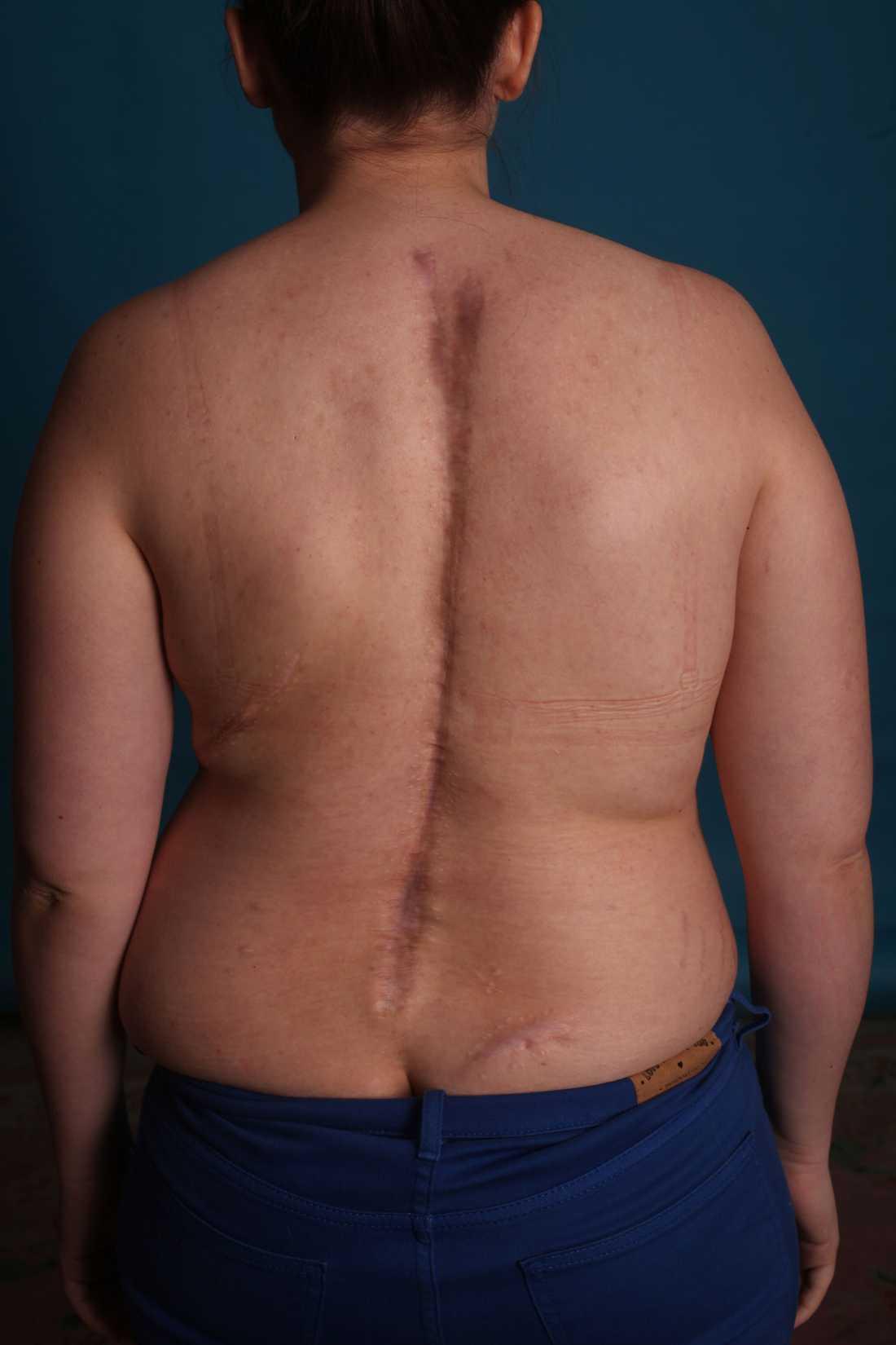 Efter fem operationer är Lindas kropp full med ärr.