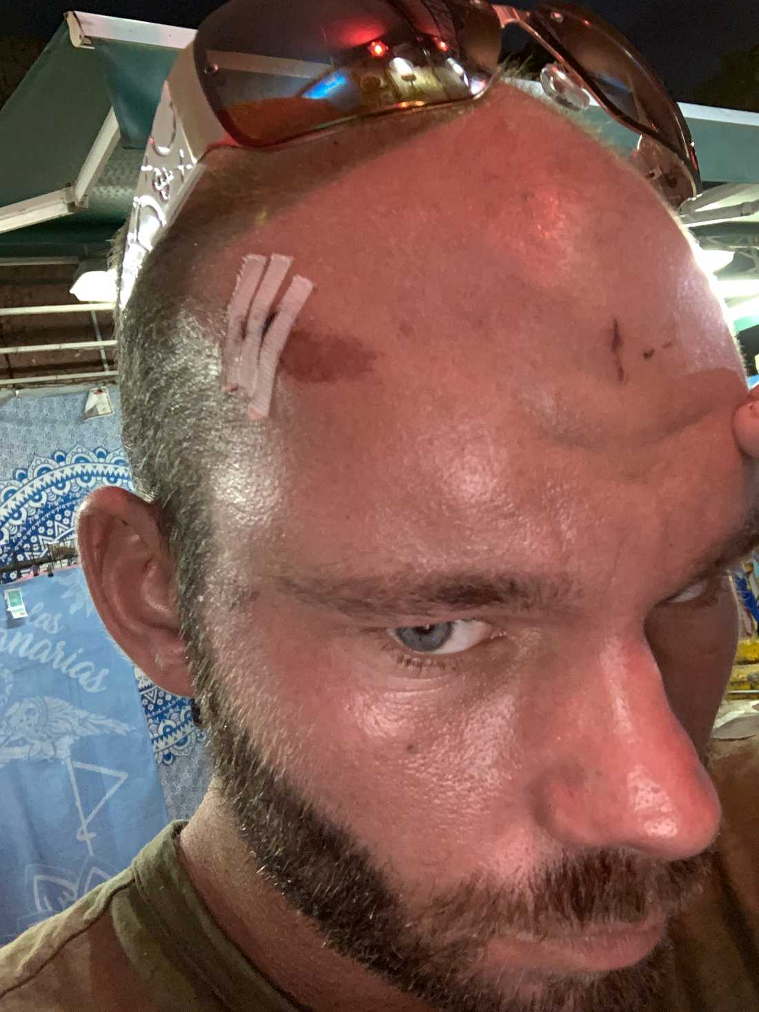 Mikael blev sydd med tio stygn efter attacken.