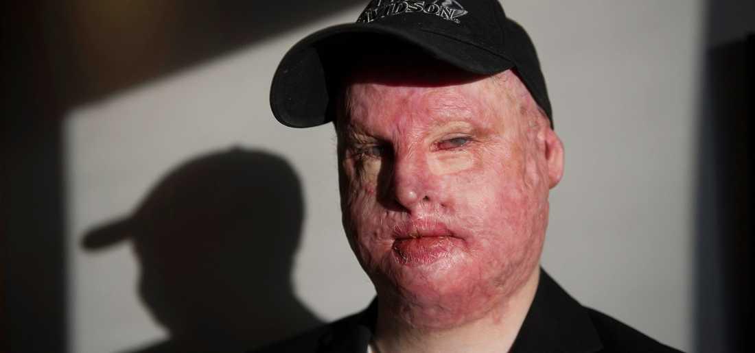 Gustaf Seppelin Solli överlevde med svåra brännskador efter ha fått frätande kalk över sig. Nu döms arbetsgivaren.