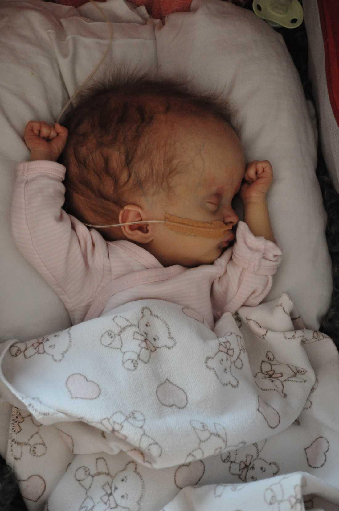 När Elvira var tre dagar fördes hon över till ett hospice för att dö, där hon fick palliativ vård. Hon överlevde mot alla odds.