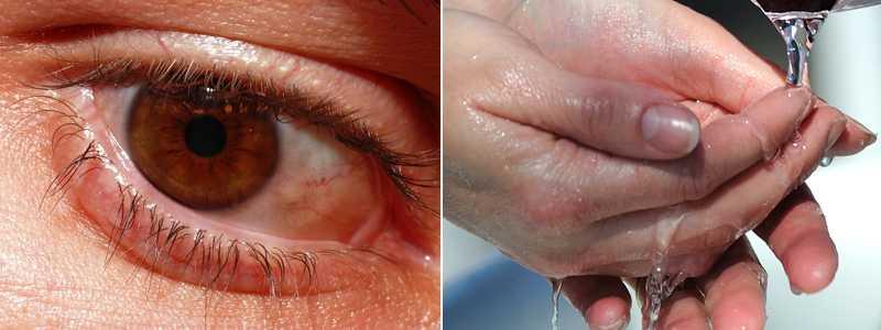 början till ögoninflammation