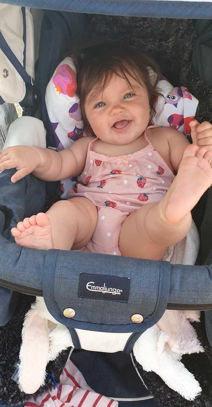 Nikki föddes med en hel peruk, säger mamman Zara Eriksson-Wigg, från Iggesund utanför Hudiksvall. Här är Nikki sju månader.