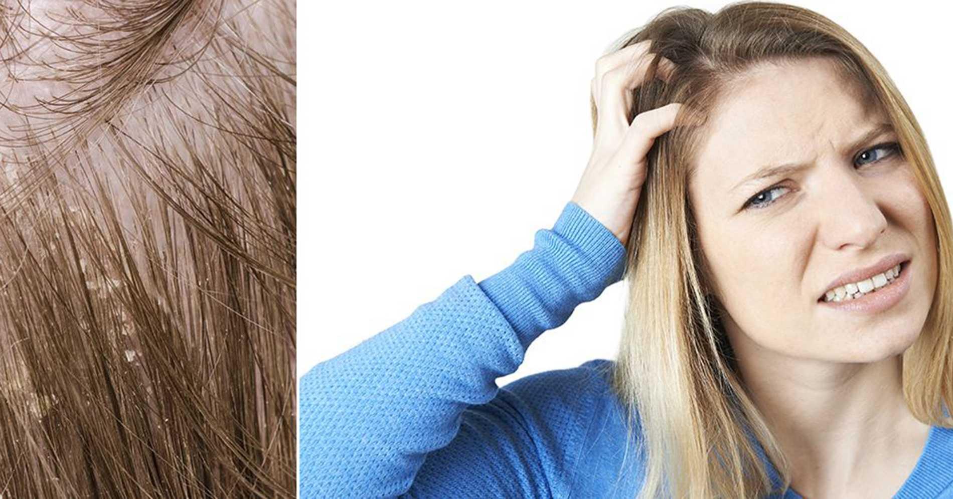 Mot kliande hårbotten