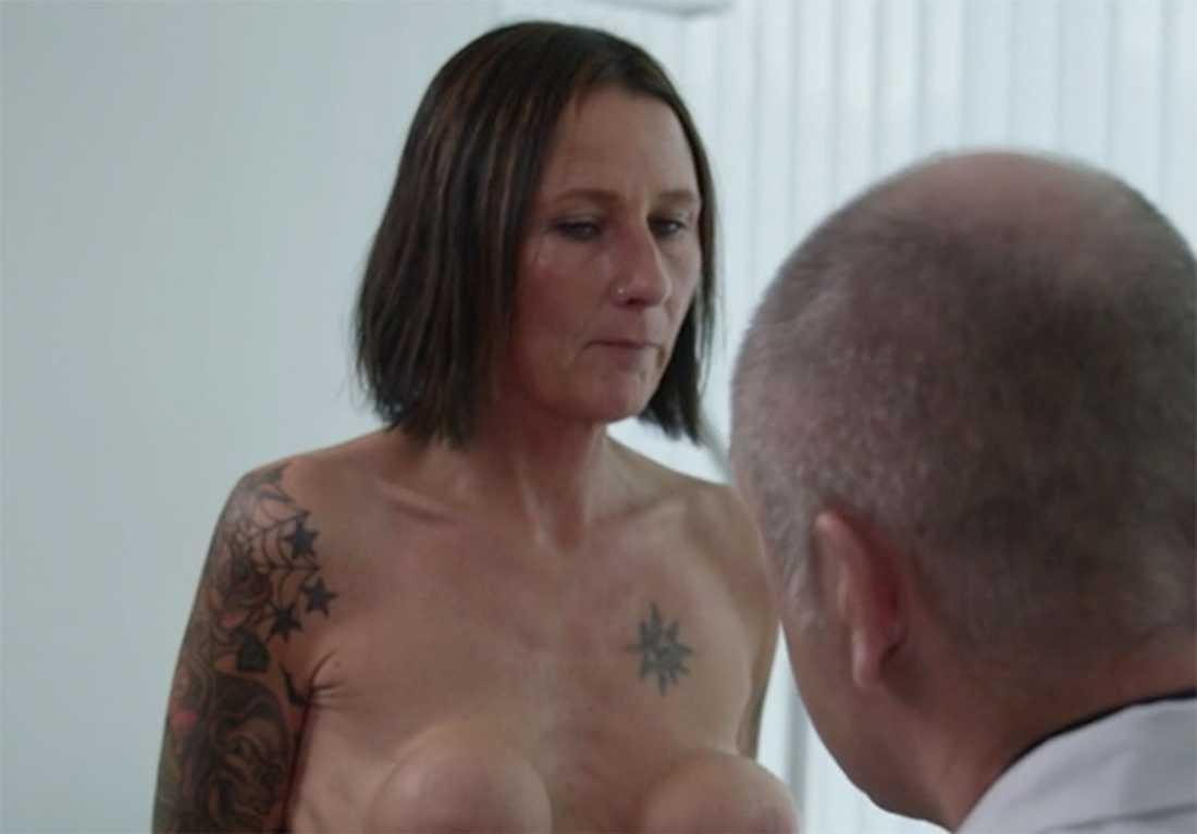 Operationen blev en besvikelse, brösten började göra ont, ändrade form och blev hårda.