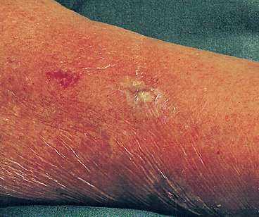 infekterat sår feber