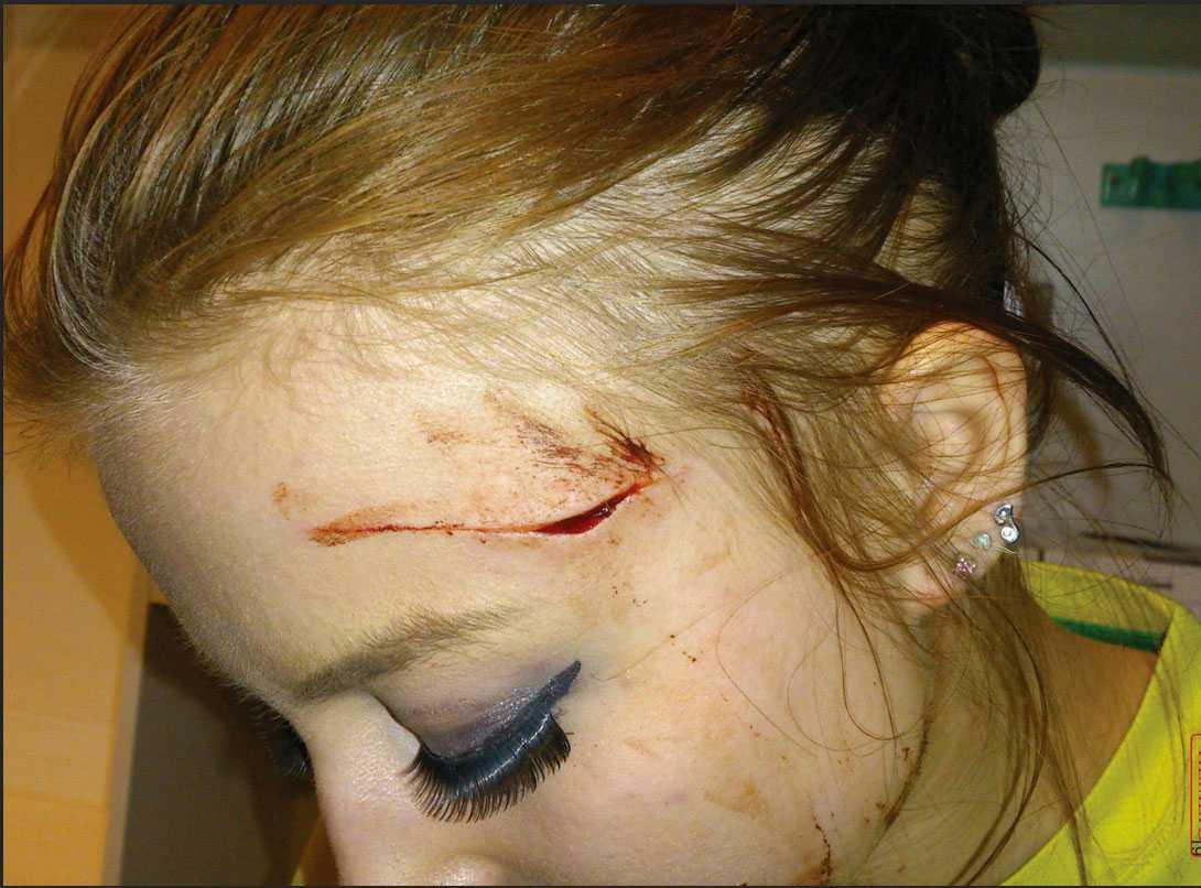 Julia blev knivskuren i ansiktet för att hon gav en man nobben.