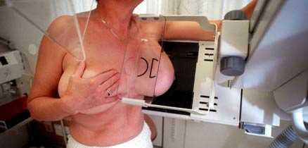 """Forskarlarm I en mammografistudie från England har forskare kunnat visa på att kvinnor med asymmetriska bröst har en större risk att drabbas av bröstcancer. Den svenska läkaren Elisabet Lidbrink är dock kritisk till resultatet. """"Den eventuella riskökningen måste i så fall bekräftas med större studier"""", säger hon."""