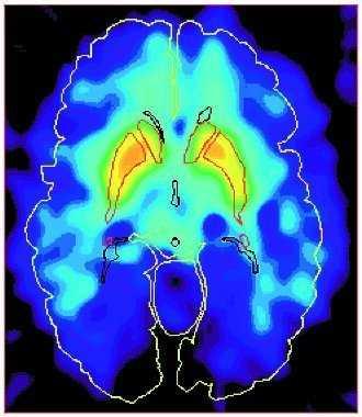 Hjärna med adhd.