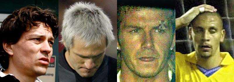 Jari Litmanen, Santiago Canizares, David Beckham och Rio Ferdinand har alla råkat ut för ovanliga skador.