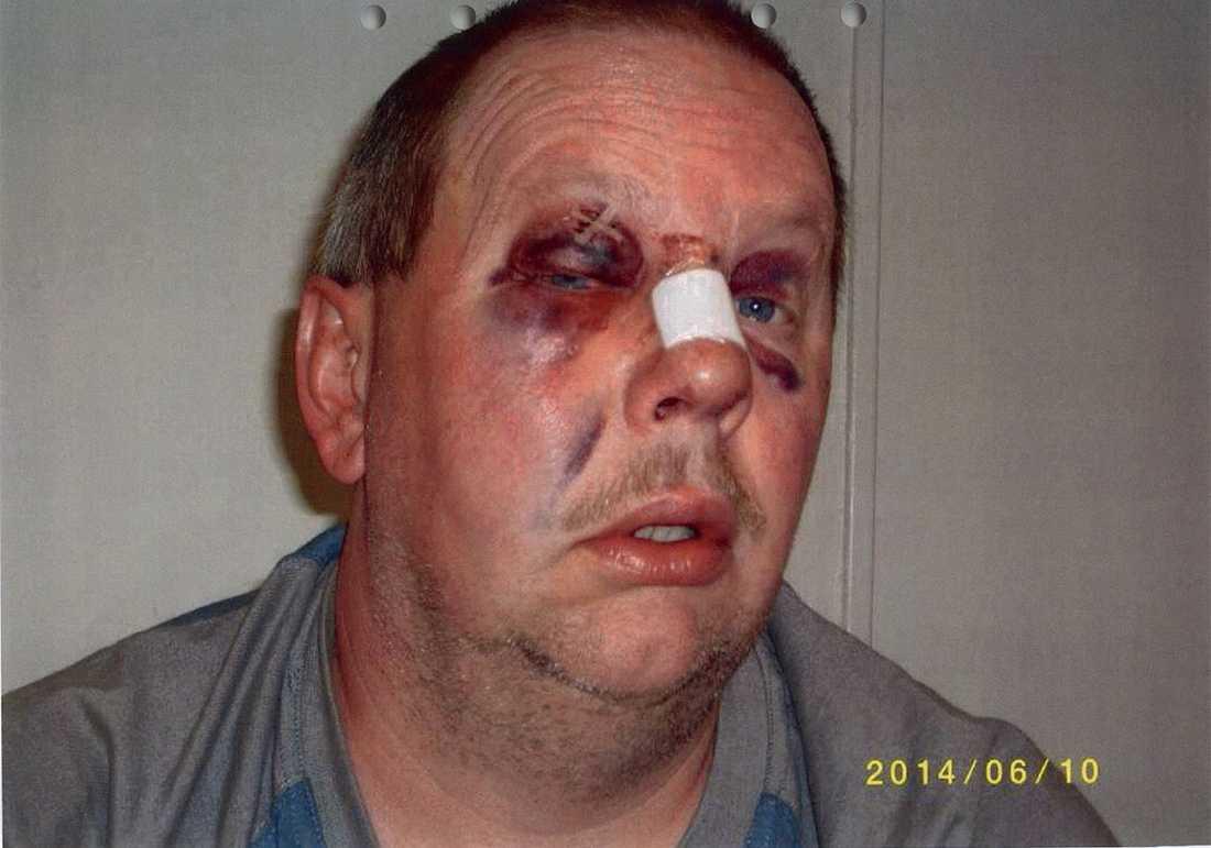 Anders Eklund misshandlades av medfångar i juni 2014.