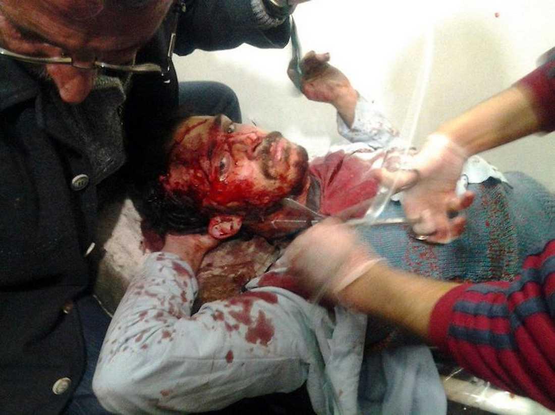 En man plåstras om på sjukhus i Homs – han är en av de hundratals skadade i staden.