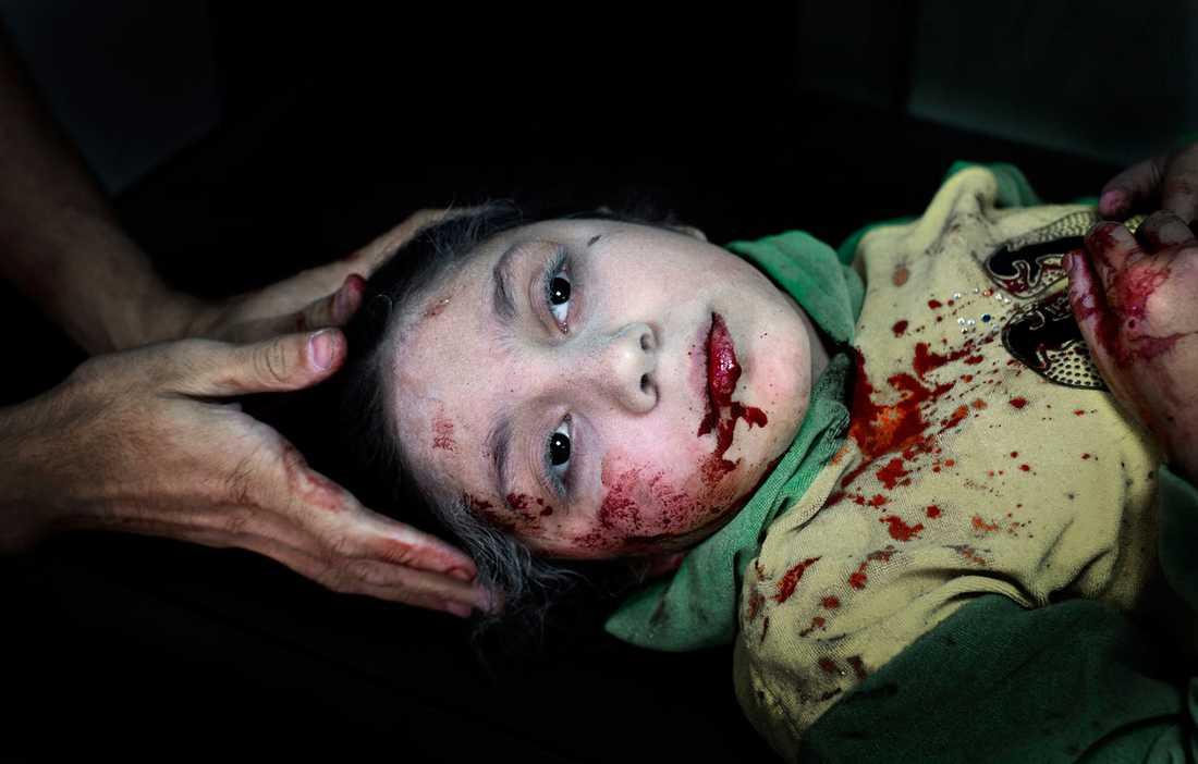 Dania Kilsi, 11, behandlas för splitterskador. Hon och hennes yngre syskon, Zaid och Fatima, lekte utanför hemmet när en granat slog ner.