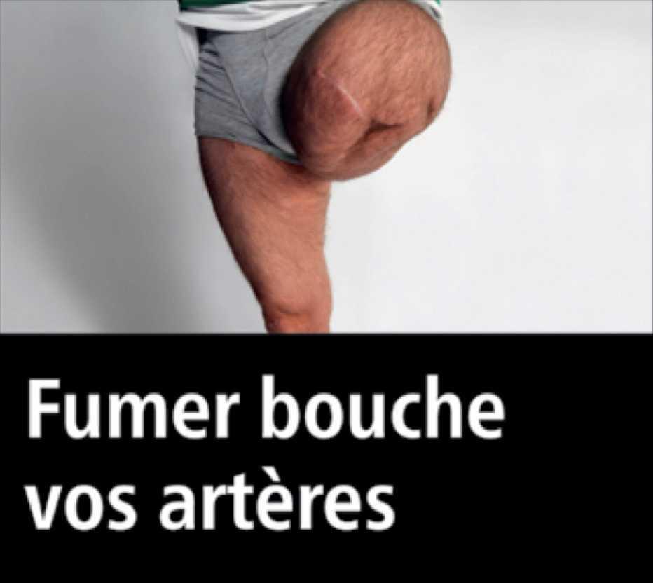 Den Franska familjen är övertygad om att det är pappans ben på bilden.