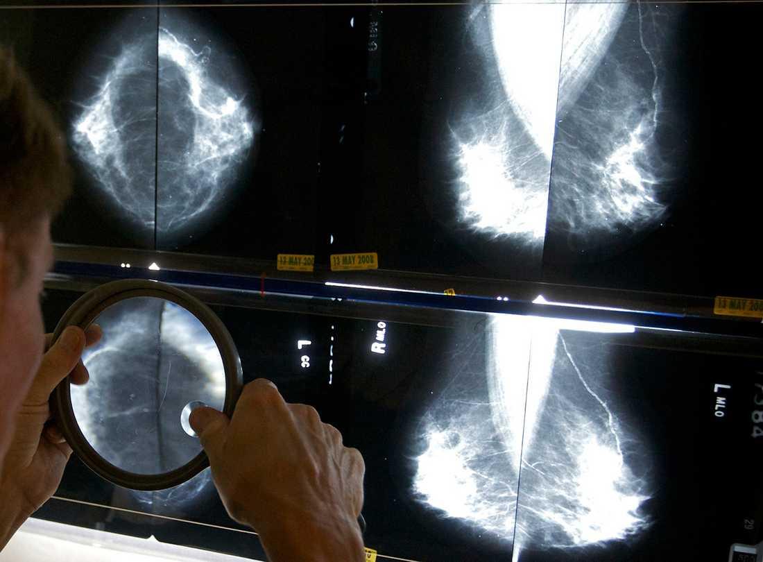 Läkare studerar röntgenbilder på kvinnobröst.