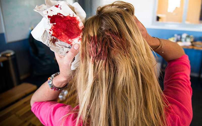 Linda Lindorff slog huvudet i en fönsterbräda under veckans träning.
