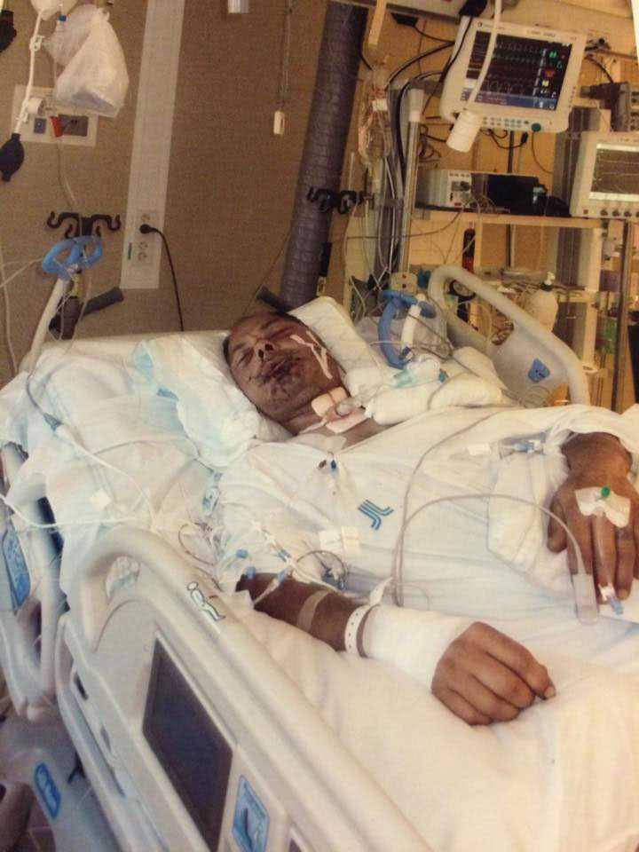 Hoas i sjukhussängen efter att ha fått en hästspark rakt i ansiktet.