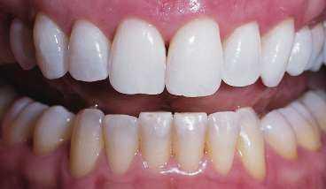 Blekning hos tandläkaren - efter.