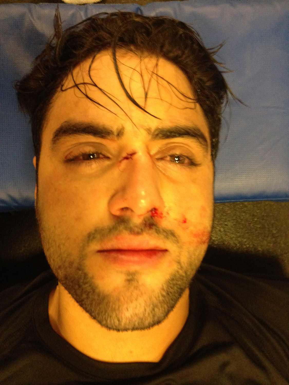 Dramatisk olycka Efter olyckan fick Simon Kachoa uppsöka sjukvård för stygn och misstänkt hjärnskakning.