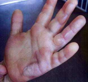 Den fyraårige pojken kom till dagis med handen helt sönderbränd.