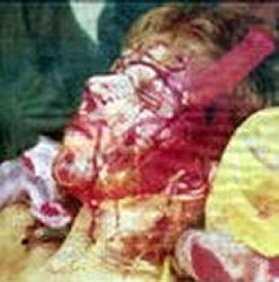 När Lena togs in efter överfallet satt kniven kvar i vänstra ansiktshalvan där den fastnat i käkbenet.