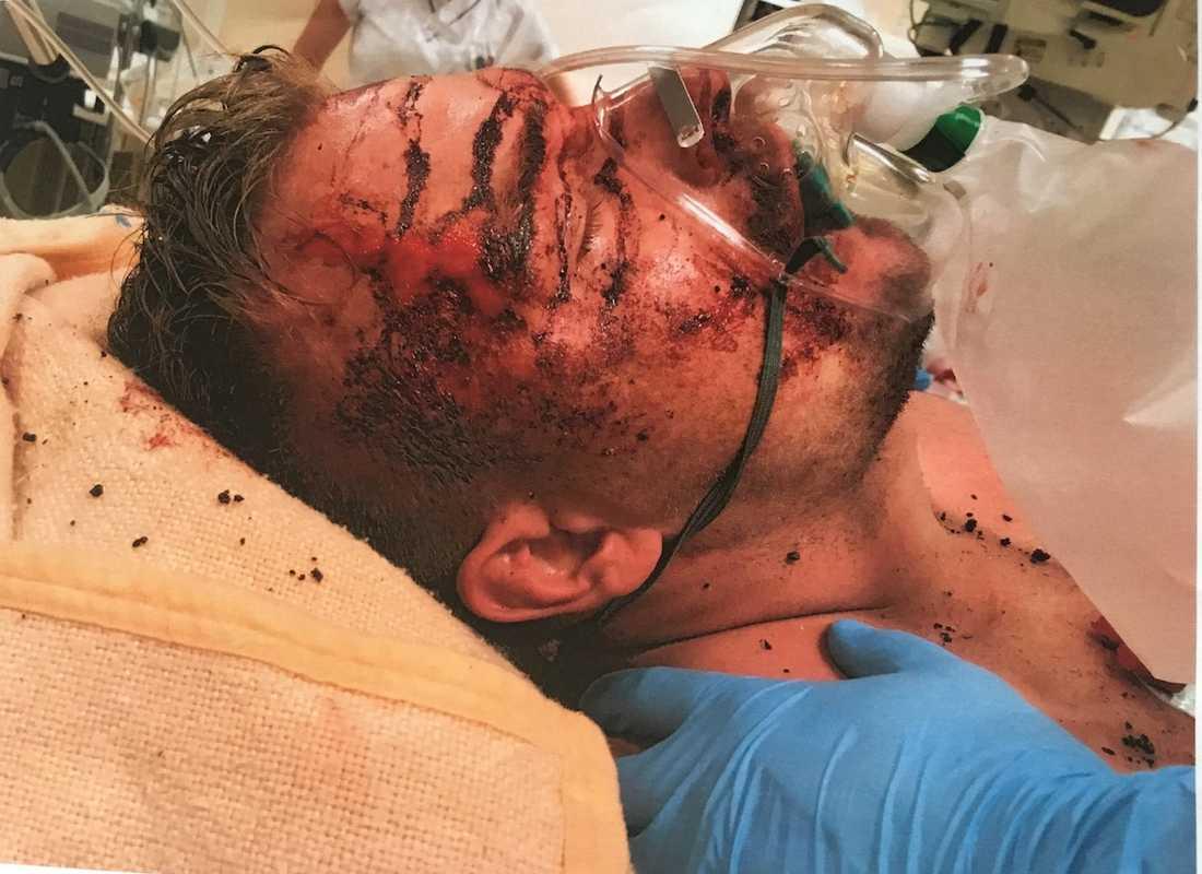 Stefan fick svåra brännskador och låg nedsövd i två dagar. Sedan följde veckor på sjukhus med flera operationer.