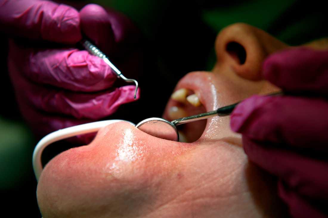 En tredjedel av de tänder som hade lagats med kompositfyllning direkt i munnen behövde lagas igen inom fem år. Arkivbild.