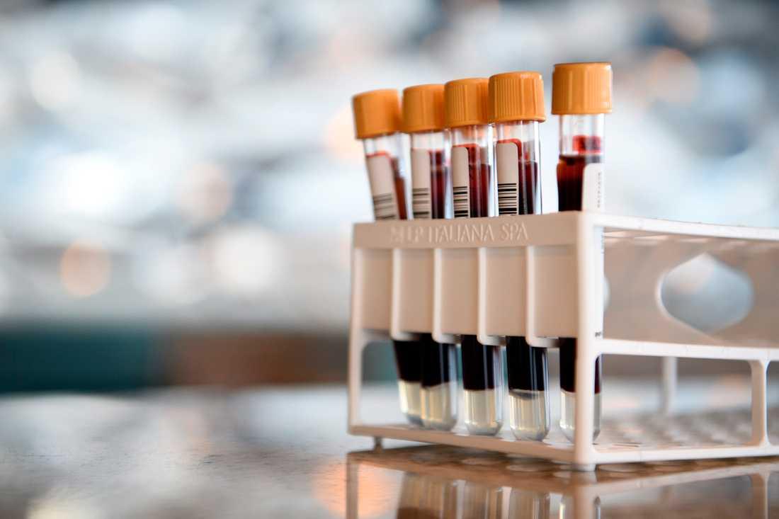 I provrören samlas Kristoffer Lindhs blod som sedan ska analyseras hos Unilabs.