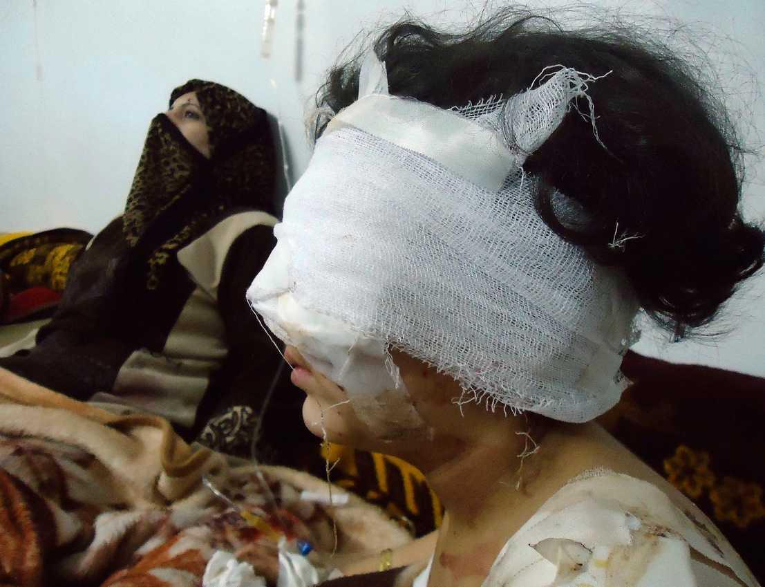 En skadad flicka sitter bredvid sin mamma sedan staden Homs bombats igen.