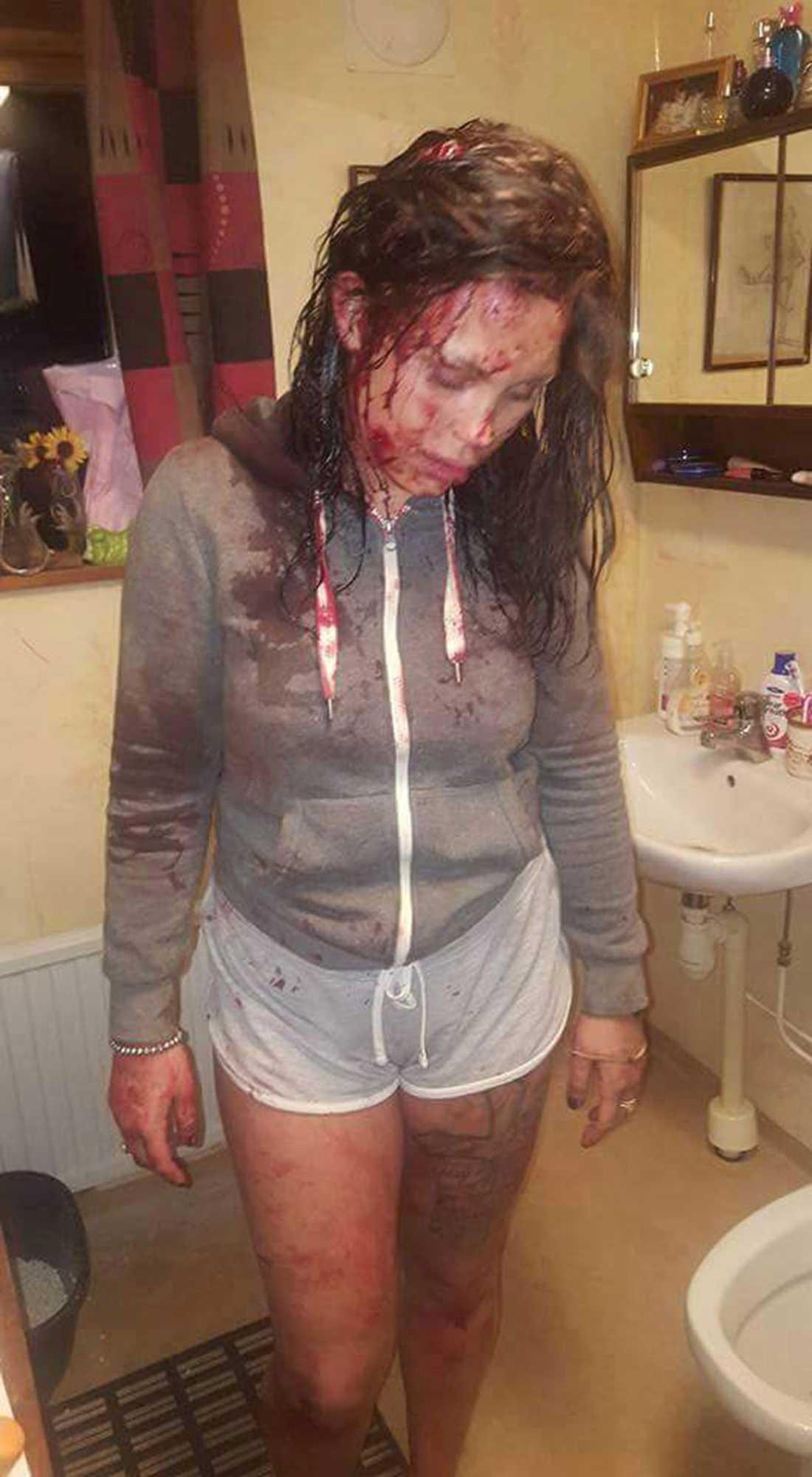 Josefines vänstra käke gick av, hon har ett bitmärke som är sytt på höger kind, har blivit sydd i huvudet och hjärnskakning.