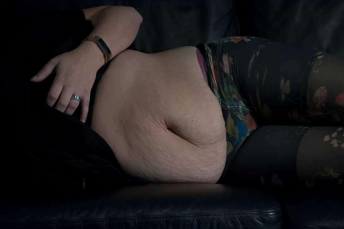 Lindas  mage gick sönder i samband med graviditeten.