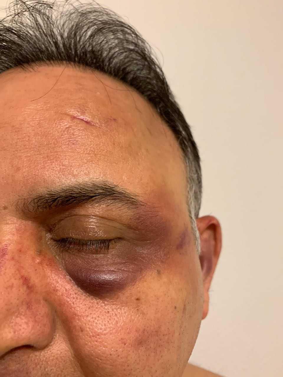 Behnam Shiravand vågade inte åka tillbaka till akuten i Malmö efter misshandeln. I stället tog han sig till Lund för att undersökas.