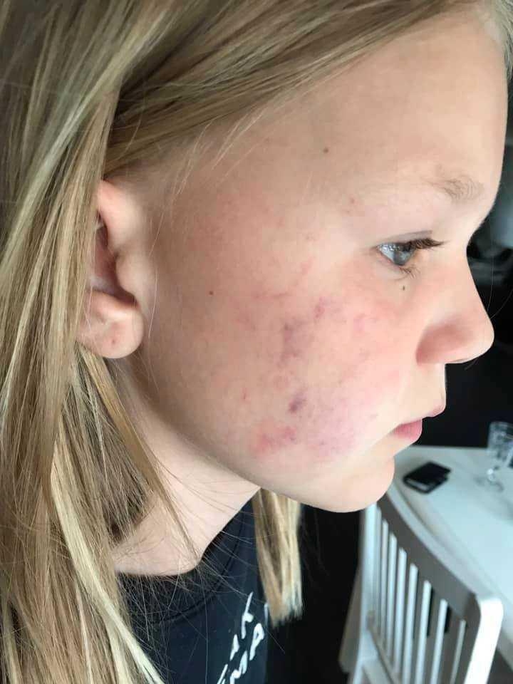Hanna Stenberg misshandlades av okända män på väg från skolan.