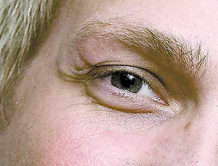 Skadan ovanför ögat har läkt ihop till ett nästan osynligt ärr.