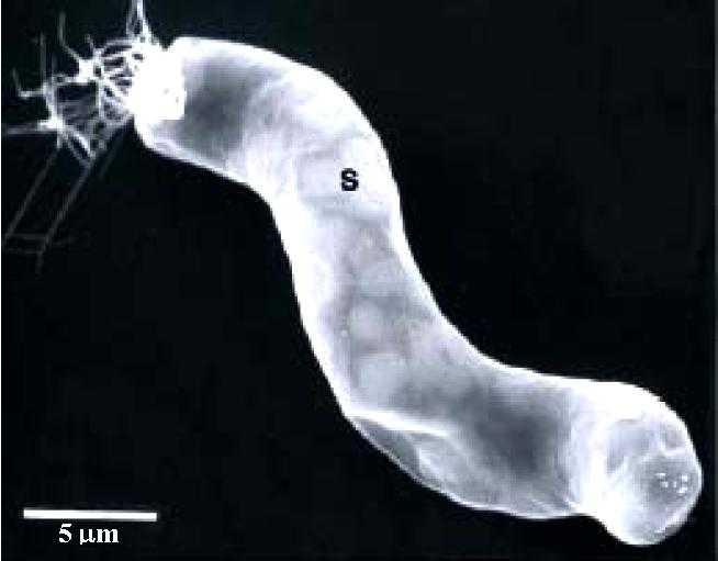 En bakterie som hittades i meteoriterna.