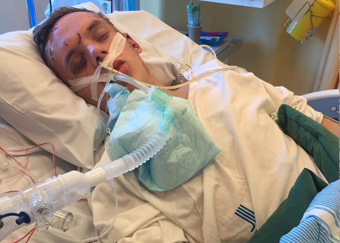 Viktor låg nedsövd i drygt 10 dagar efter olyckan.
