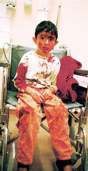 48 stygn När Ofa Rashid kom in till sjukhuset efter hundattacken var han blodig från topp till tå. 48 stygn krävdes för att lappa ihop sexåringen.
