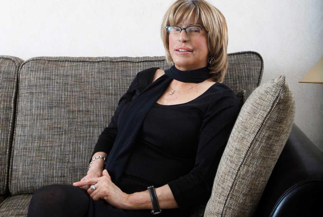 Svenska Maria Rashidi, 55, har genomgått många operationer.