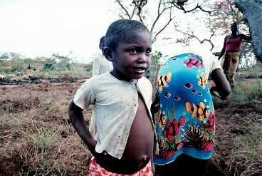 Mocambique är ett av världens fattigaste länder och även om tillväxten varit rekordsnabb under flera år är många barn mer eller mindre undernärda.