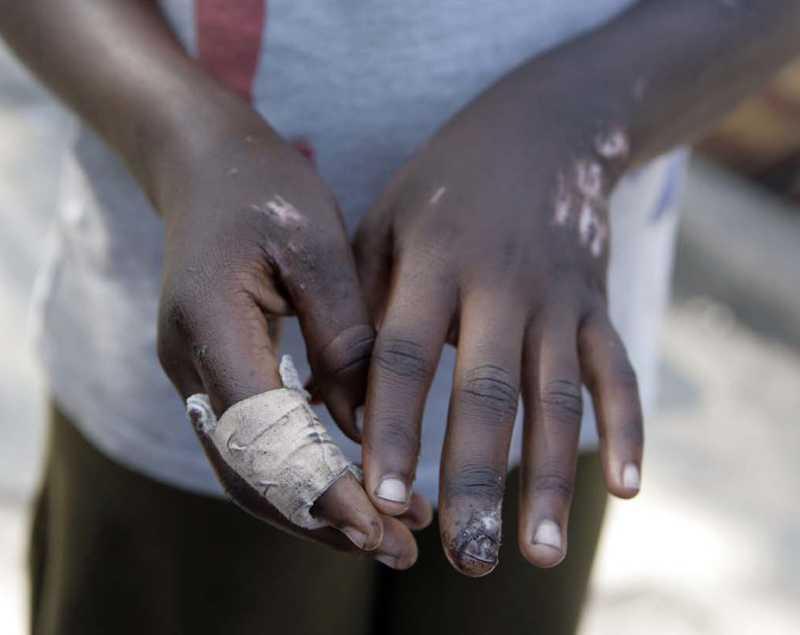 fingret krossades Celestin, 14, höll på med sin läxa när skalvet raserade huset. Efter fem timmar lyckades en granne gräva fram henne ur rasmassorna.